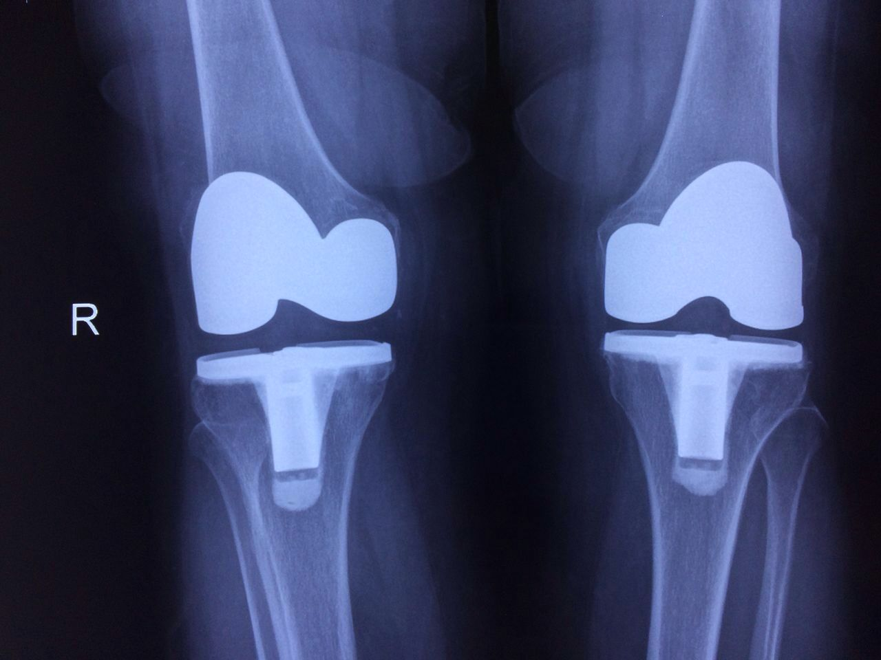 TKR with ROBONAVIGATION | Total knee replacement