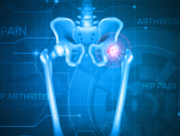 HIP-ARTHRITIS