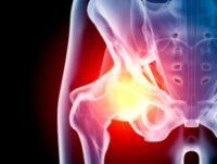 hip-pain1-300x300