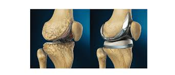 Total Knee Replacement Surgeon