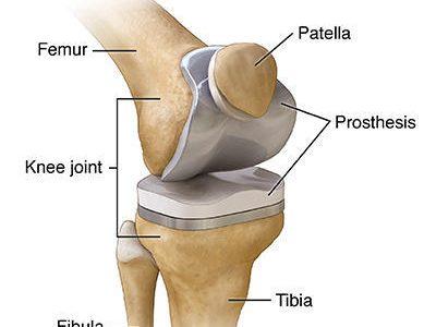 Total Knee Replacement Surgeon | Dr. Sinukumar Bhaskaran